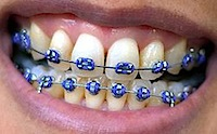 Braces image Image courtesy of Wikipedia
